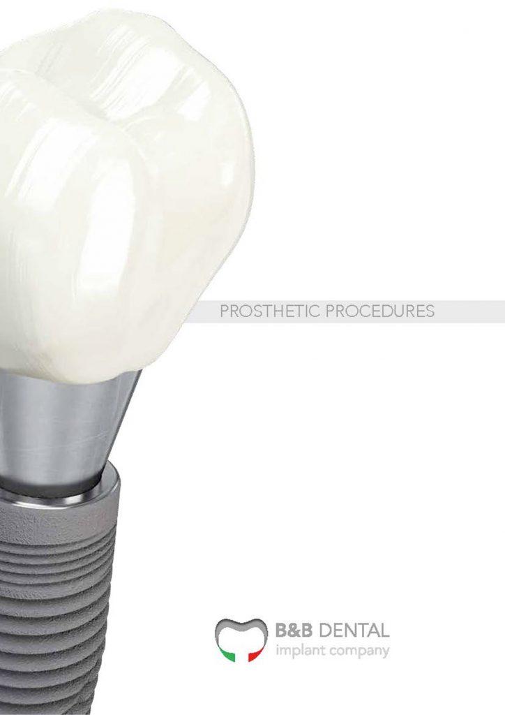 produzione impianti dentali-986