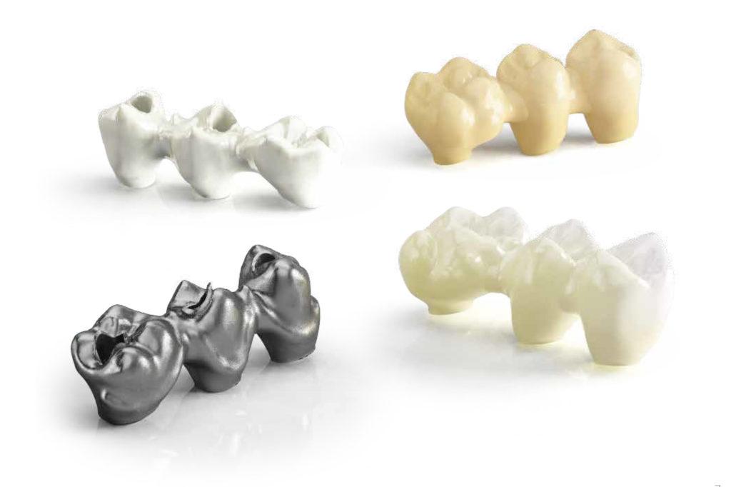 Modellazione cad cam dentale-3