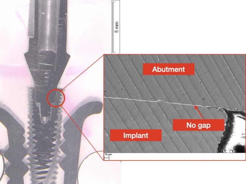 implant-abutment gap